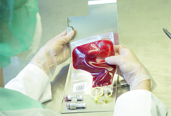 Antigen specific prostatic (PSA) si free-PSA (fPSA) | prostatita.adonisfarm.ro
